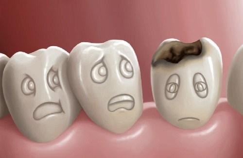 nguyên nhân gây ê buốt răng là do đâu 9