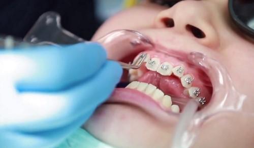 [?] Niềng Răng Chỉnh Nha Có Đau Không?