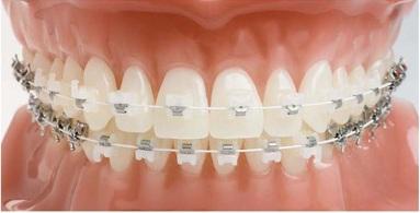 Kết quả hình ảnh cho niềng răng