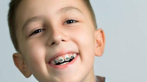 Niềng răng ở độ tuổi nào thích hợp 2