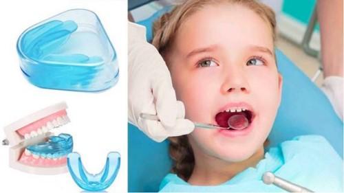 Niềng răng ở độ tuổi nào thích hợp 3