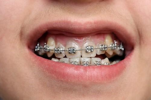 Niềng răng ở độ tuổi nào thích hợp 4