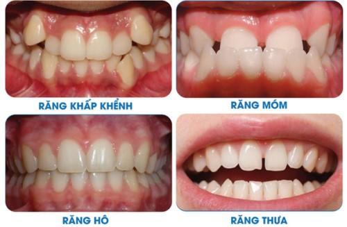 niềng răng xong không đeo hàm duy trì được không 2
