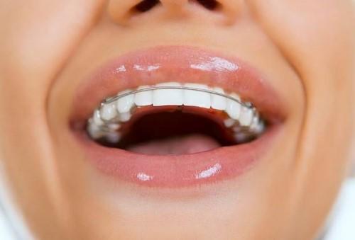 niềng răng xong không đeo hàm duy trì được không 5