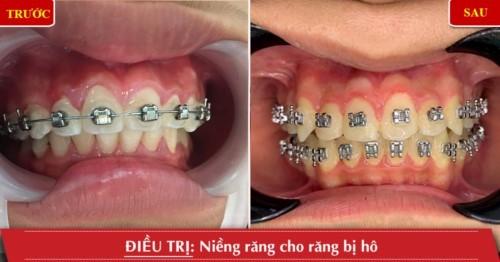 niềng răng xong không đeo hàm duy trì được không 6