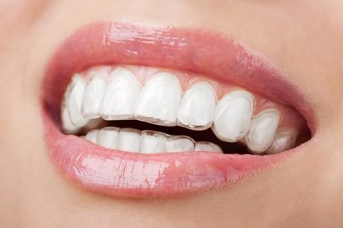 niềng răng xong không đeo hàm duy trì được không 7