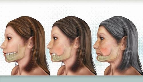 Phương pháp phục hình răng sứ