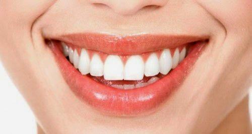 Phương pháp phục hình răng bằng cầu răng sứ