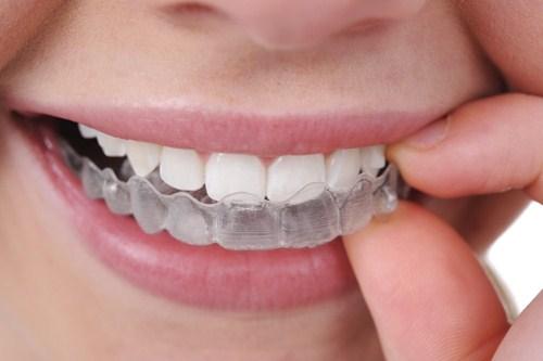 phương pháp chữa bệnh nghiến răng hiệu quả nhất  5