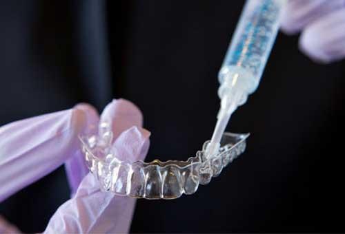 Phương pháp tẩy trắng răng tại nhà dùng máng tẩy