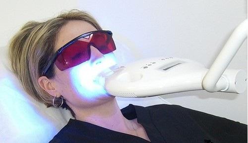 Phương pháp tẩy trắng răng tại nhà