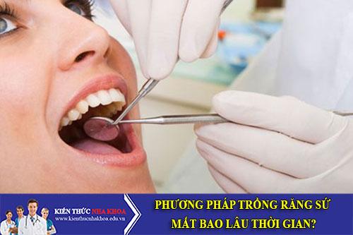 phương pháp trồng răng sứ mất bao lâu thời gian