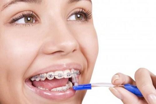 phương pháp vệ sinh răng miệng khi chỉnh nha 3