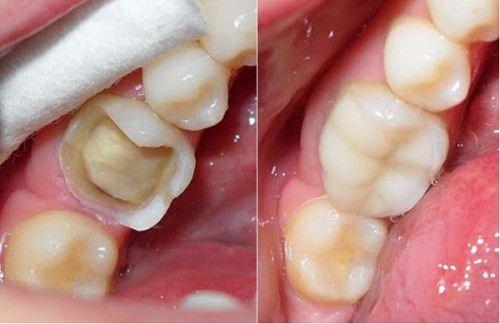 răng bị đau sau khi trồng răng sứ là do đâu 1