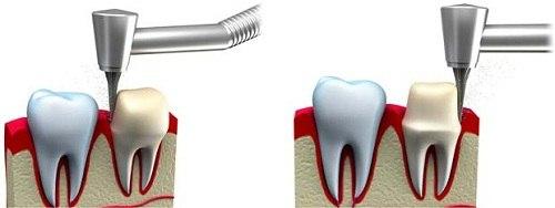 răng toàn sứ tốt nhất hiện nay là răng sứ gì 4