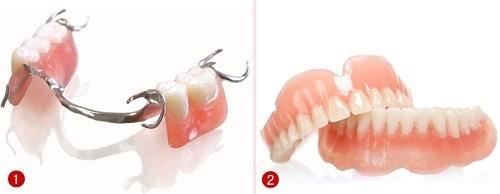 So Sánh Hàm Giả Tháo Lắp Và Trồng Răng Implant -2