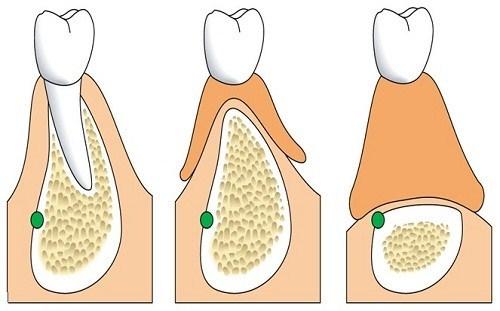 So Sánh Hàm Giả Tháo Lắp Và Trồng Răng Implant -4