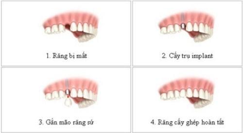 So Sánh Hàm Giả Tháo Lắp Và Trồng Răng Implant -5