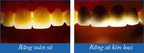 so sánh sứ kim loại và răng toàn sứ