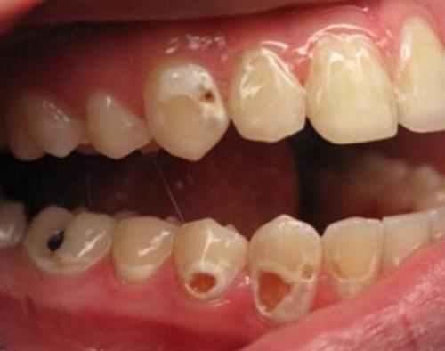 sâu răng và tác hại của bệnh sâu răng 4