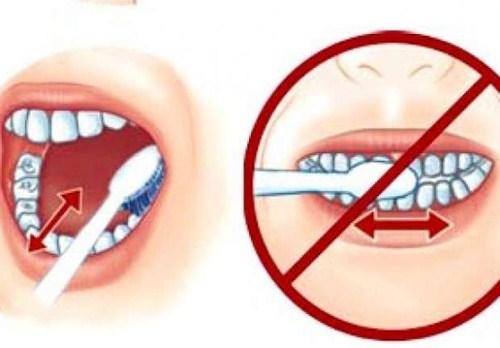 tại sao bị khuyết cổ răng? cách phòng ngừa bệnh như thế nào 1