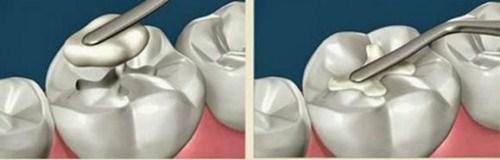tại sao bị khuyết cổ răng? cách phòng ngừa bệnh như thế nào 9