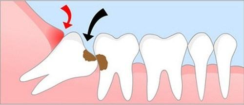 tại sao cần phải nhổ răng số 8 - 2