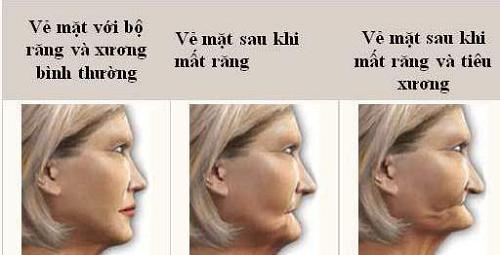 mất răng lâu gây tiêu xương hàm