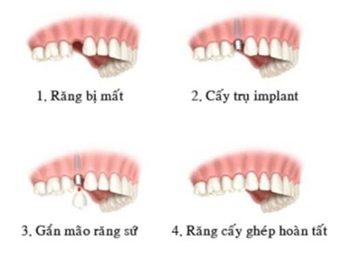 Image result for phuong phap trong implant
