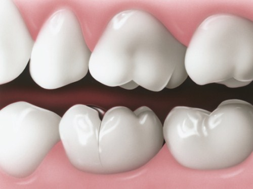 trồng răng sứ bị hôi miệng phải làm sao 1