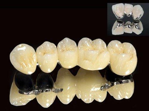 trồng răng sứ bị hôi miệng phải làm sao 2