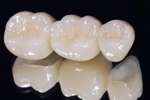 trồng răng sứ bị hôi miệng phải làm sao 5
