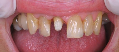 Trồng răng sứ có sử dụng vĩnh viễn được không?