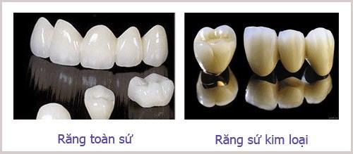 BÍ QUYẾT chọn răng sứ loại nào tốt nhất - Nha khoa Paris 2