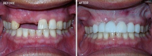 Phục hình răng - NÊN hay KHÔNG NÊN làm cầu răng sứ 2