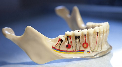 Viêm Tủy Răng Có Làm Mất Răng Không -8