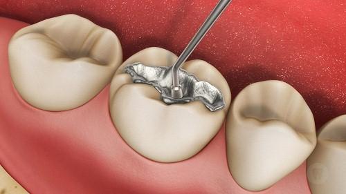 Các Loại Vật Liệu Dùng Trong Trám Răng