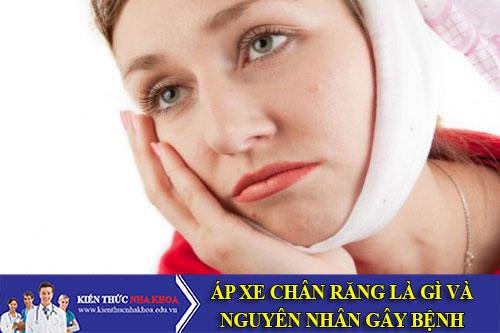 Áp Xe Chân Răng Là Gì?- Nguyên Nhân Gây Bệnh Áp Xe Chân Răng