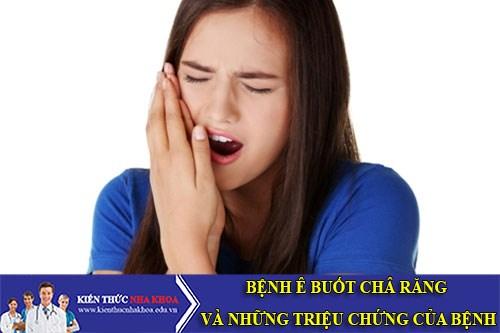 Bệnh Ê Buốt Chân Răng Và Những Triệu Chứng Của Bệnh