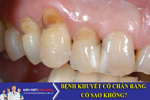 Bệnh Khuyết Cổ Chân Răng Có Sao Không?