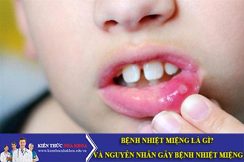 Bệnh Nhiệt Miệng Là Gì? Và Nguyên Nhân Gây Bệnh Nhiệt Miệng