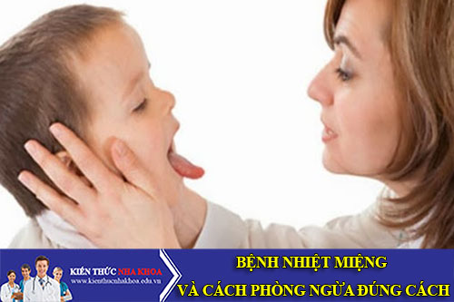 Bệnh Nhiệt Miệng Và Cách Phòng Ngừa Đúng Cách