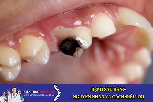 Bệnh sâu răng - nguyên nhân và cách điều trị