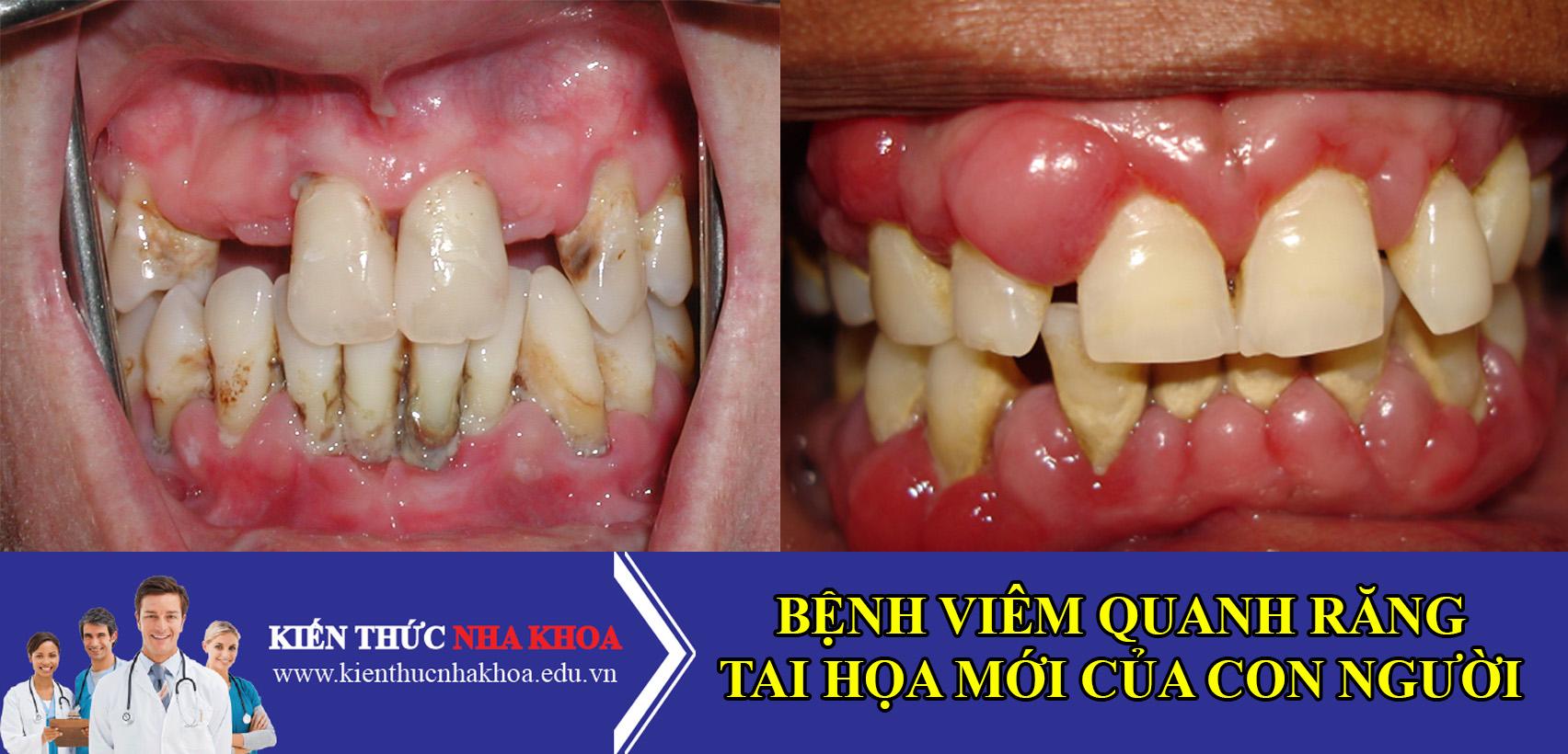 Bệnh Viêm Quanh Răng - Tai Họa Mới Của Con Người