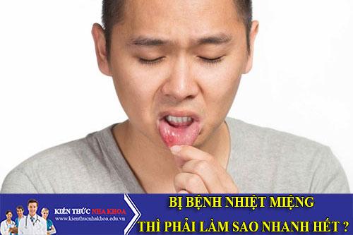 Bị Bệnh Nhiệt Miệng Thì Phải Làm Sao?