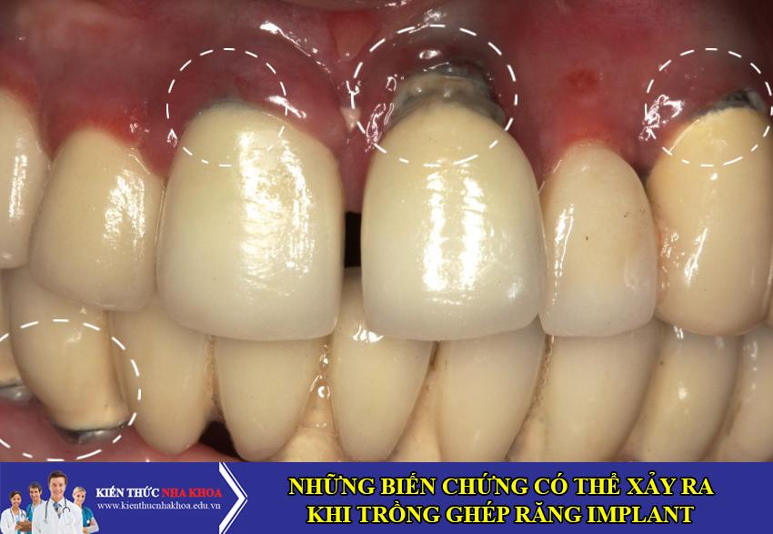Những Biến Chứng Có Thể Xảy Ra Khi Cấy Ghép Răng Implant