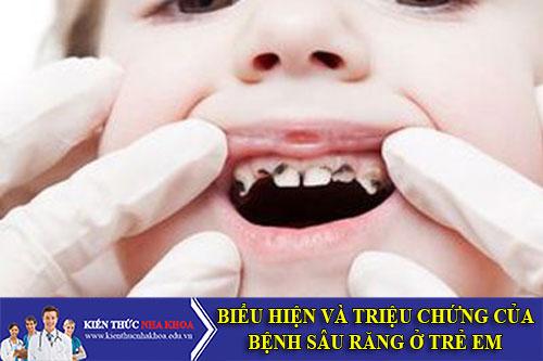 Biểu Hiện Và Triệu Chứng Của Bệnh Sâu Răng Ở Trẻ Em