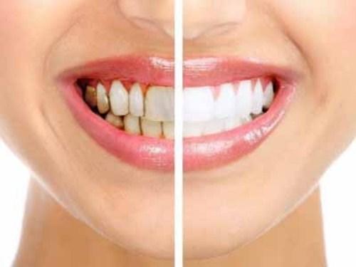 Bọc răng sứ đã thay đổi cuộc đời tôi như thế nào?