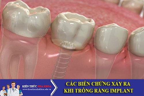 Các Biến Chứng Xảy Ra Khi Trồng Răng Implant