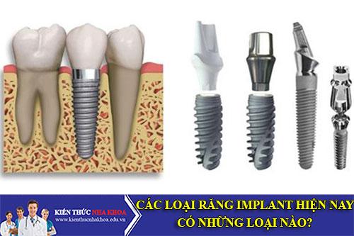 Các Loại Răng Implant Hiện Nay Có Những Loại Nào?